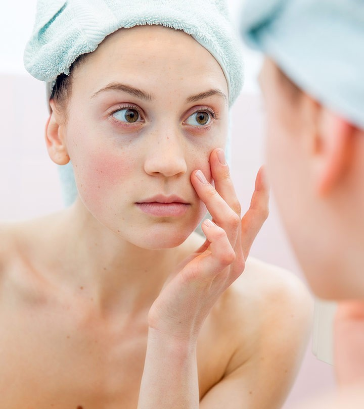 how to remove dark circles permanently