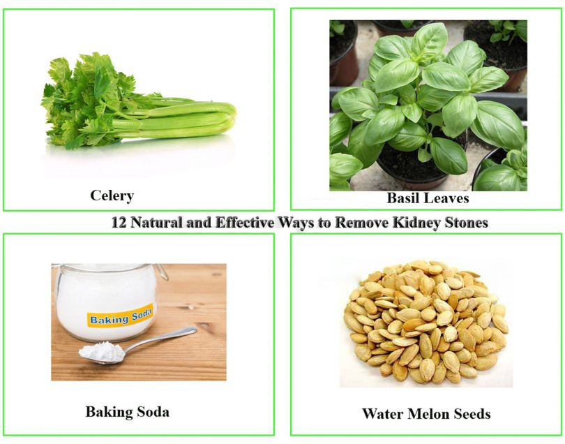 how do you get rid of kidney stones at home