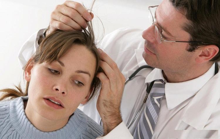 hair falling disease